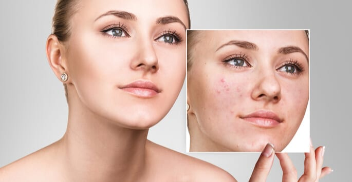 , Options for Acne Treatment