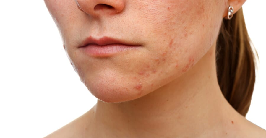 What to Avoid When Dealing with Acne